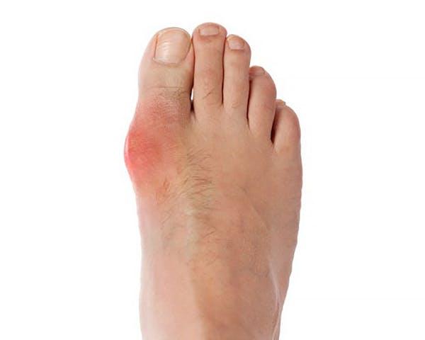 dolor repentino en dedo gordo del pie
