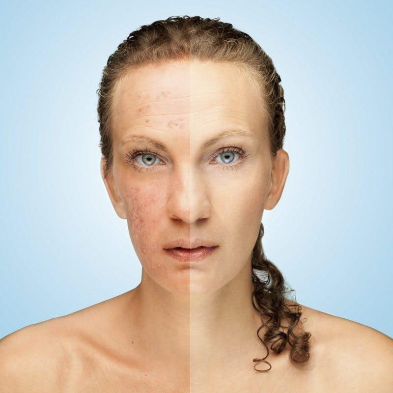 """""""Por primera vez en 15 años no tengo acné"""""""