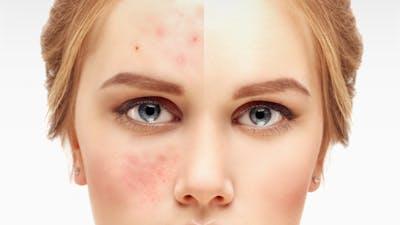 ¿Puede la dieta cetogénica curar el acné?