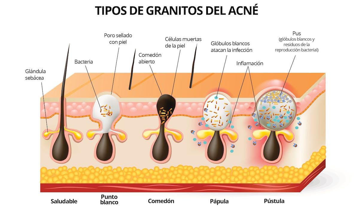 dieta cetosisgenica para acne