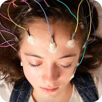 Dieta cetogénica y epilepsia