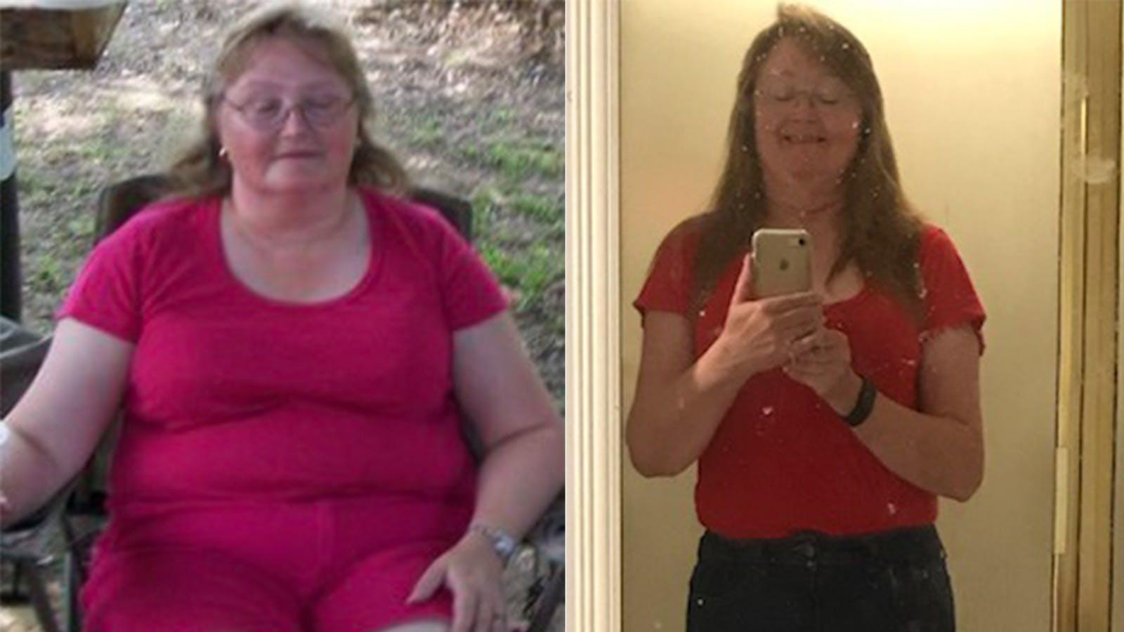 Adiós a 27 kg y todos los problemas de salud con una dieta keto