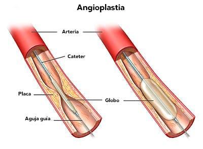 Angioplastias