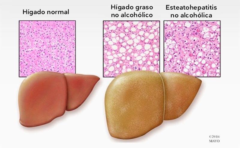 Hígados