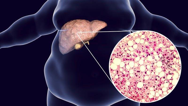 Estudio pionero: comer bajo en carbohidratos es un tratamiento eficaz para el hígado graso
