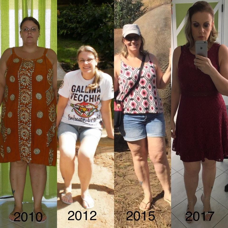 Bajar de peso cirugia bariatrica