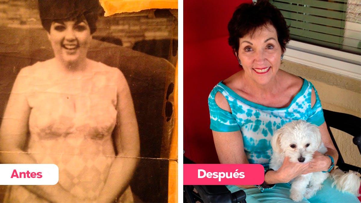 """La dieta cetogénica: """"Me volví libre y hermosa"""""""