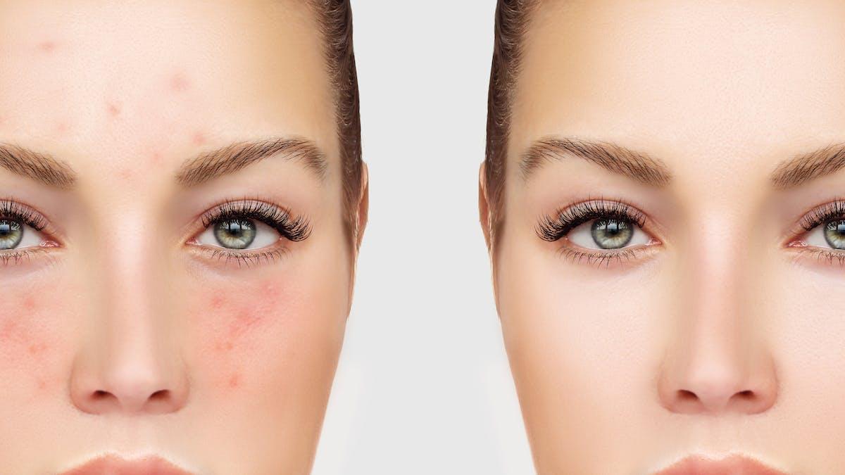 El movimiento de positividad del acné