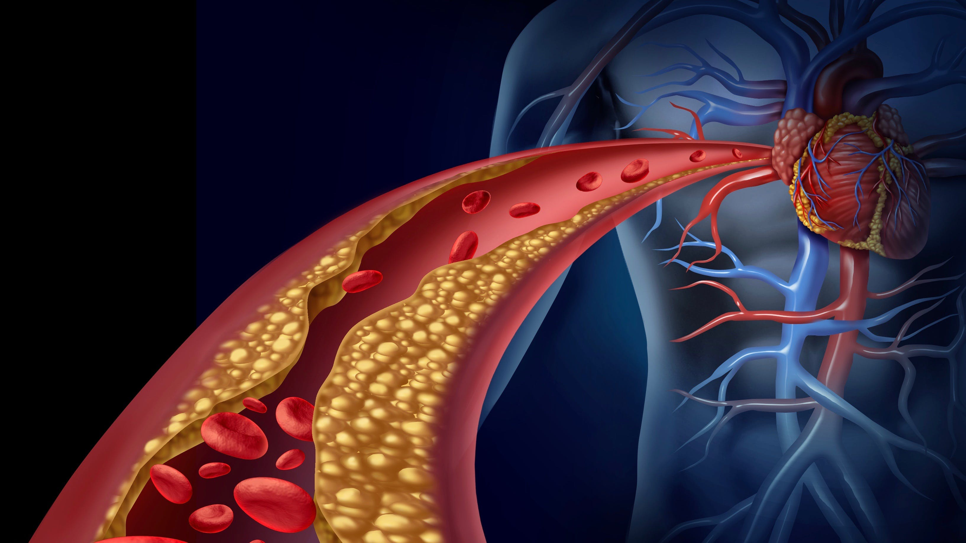 Arteria bloqueda