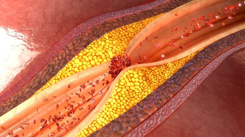 Placa arteria coronaria