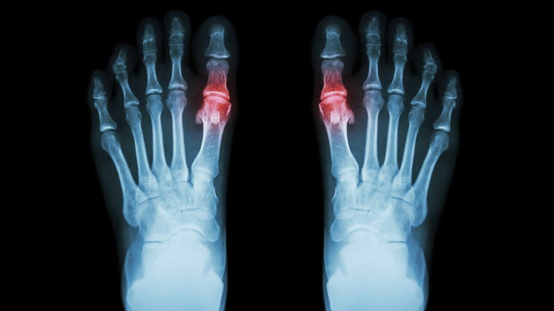 Gota , Rheumatoid arthritis