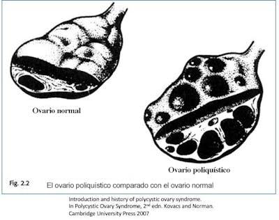 Comparación ovario normal – ovario poliquístico