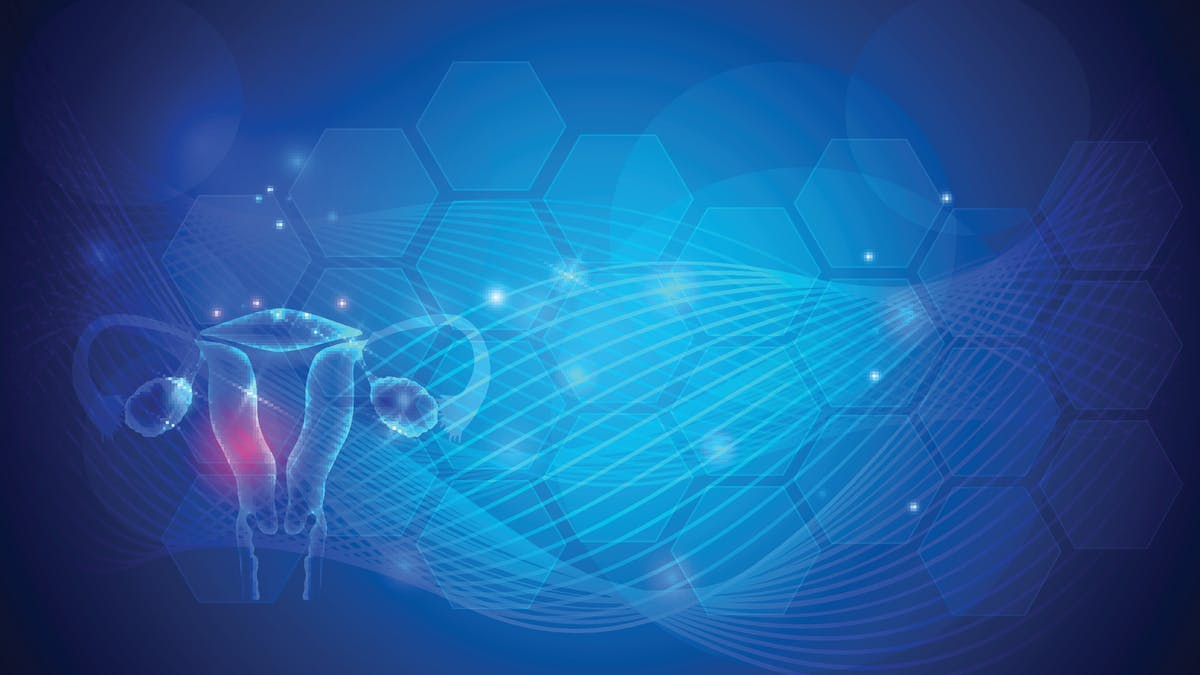 La dificultad de diagnosticar el síndrome del ovario poliquístico: SOP 4