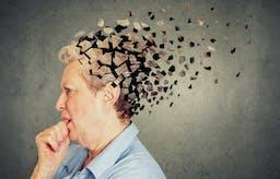 ¿Tiene importancia un LDL alto en el Alzheimer de aparición temprana?