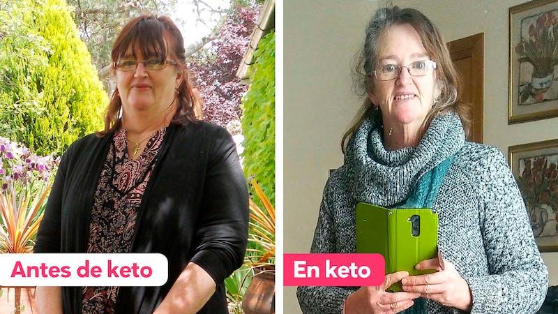 30 kg menos en un año con la dieta cetogénica