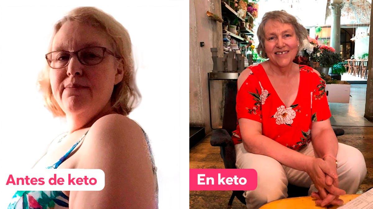 Cómo Rose perdió 32 kg con la dieta cetogénica