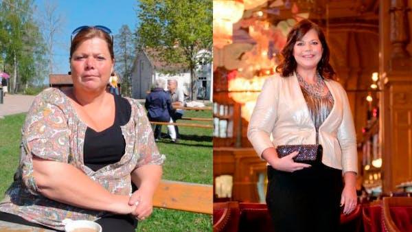 Cómo bajar 50 kg con la dieta baja en carbos en vez de cirugía gástrica