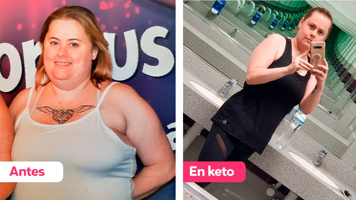 Cómo Amy perdió 40 kg y dejó la medicación