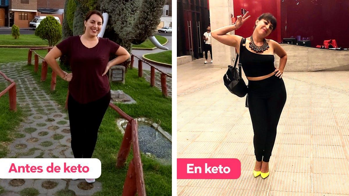 Cómo Paloma se salvó del síndrome de ovario poliquístico