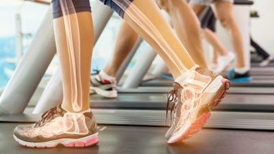 Salud ósea y alimentación baja en carbohidratos