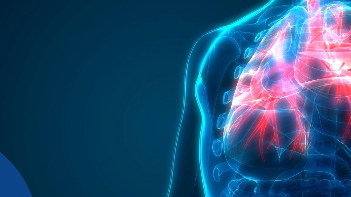 ¿Ayudan las dietas low carb con la enfermedad pulmonar?