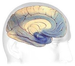 Alzheimer och hjärnan