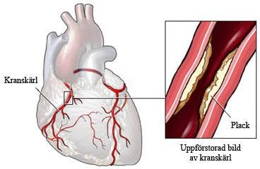 Hjärtkärlsjukdom