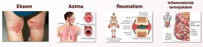 Omega 3 och inflammatoriska sjukdomar