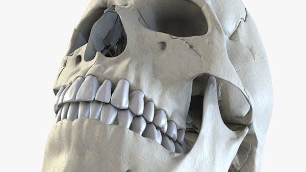 Hur du kan undvika hål i tänderna