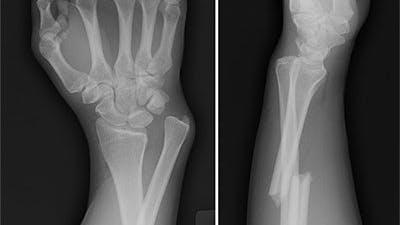 Spelar D-vitamin någon roll för skelettet?