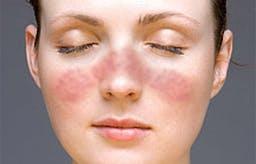 D-vitamin hjälper mot ännu en allvarlig sjukdom: SLE