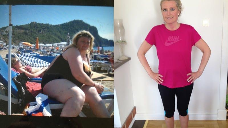 Kan huden hänga med 70 kilos viktminskning med LCHF?