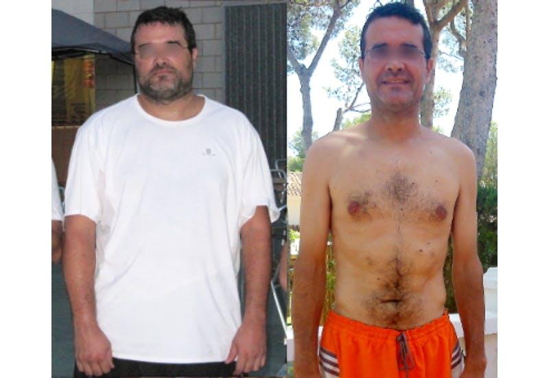"""""""Min fettlever försvann"""""""