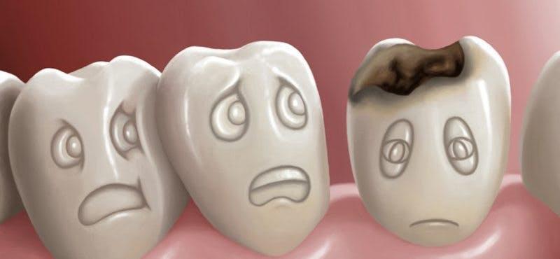 dental-cavity800