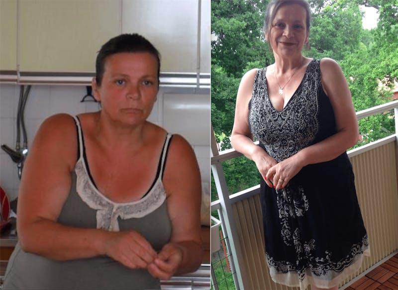 Före och efter 20 kilo