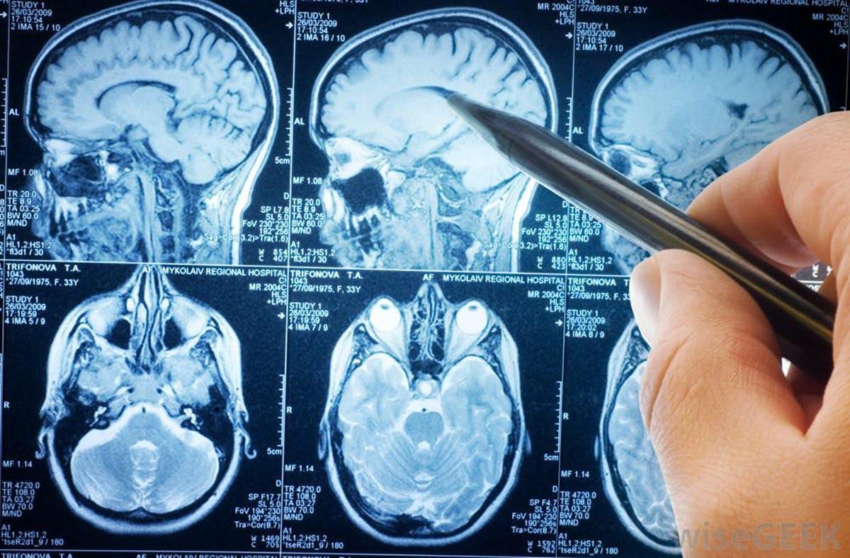 Din hjärna på snabba kolhydrater