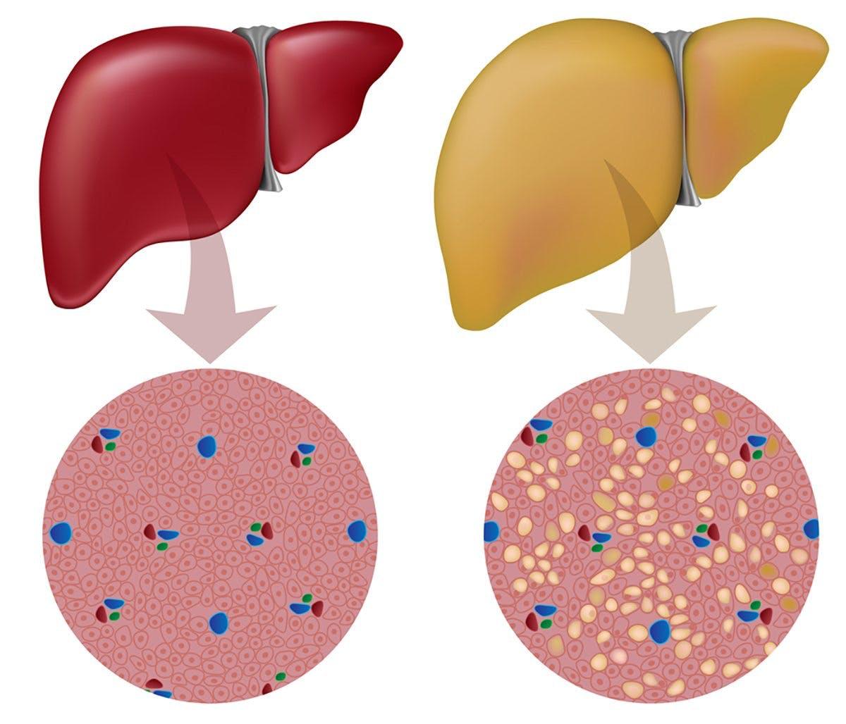 Frisk lever kontra fettlever