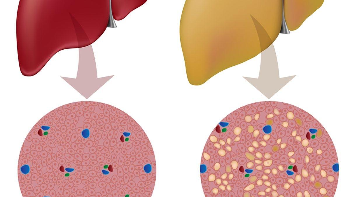 Insulin resulterar i fettlever - ny insulinmedicin slopas