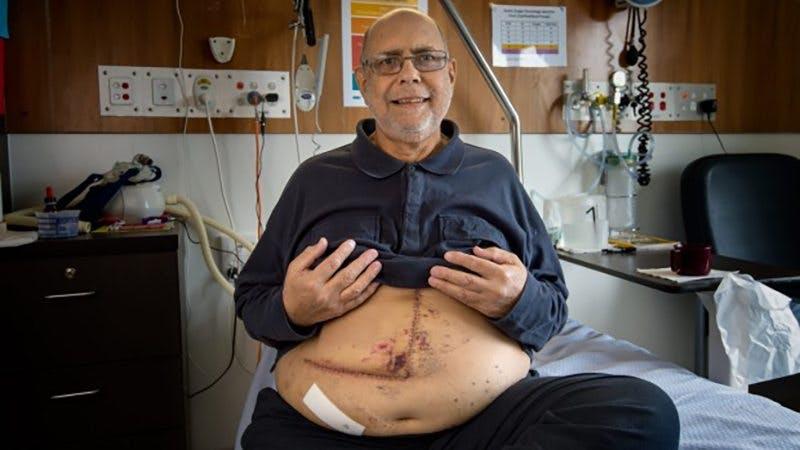 Fettlever: Den skrämmande epidemin som drabbar var tredje person i Australien