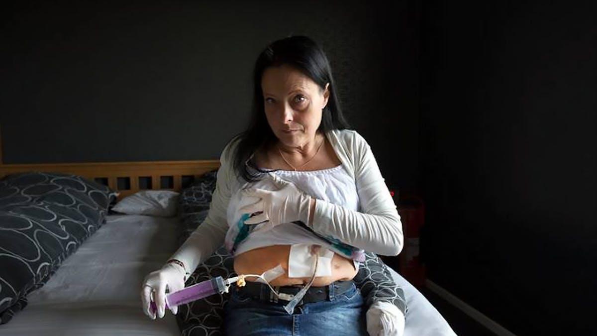 Väger 42 kilo efter fetmaoperationen – riskerar dö av svält