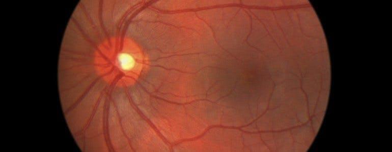retinopathy-770x300