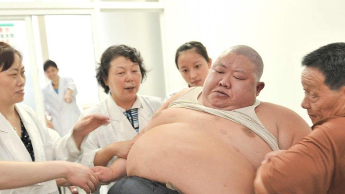 Kinas diabetesexplosion