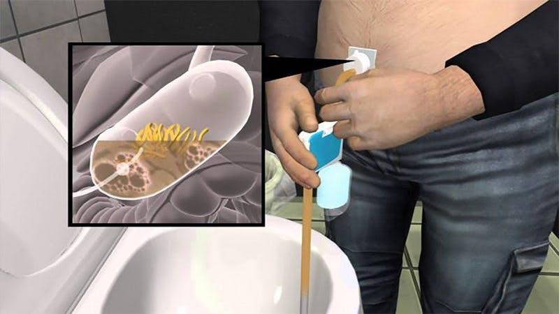 Amerikanska läkemedelsverket godkänner bulimiapparat som behandling vid fetma