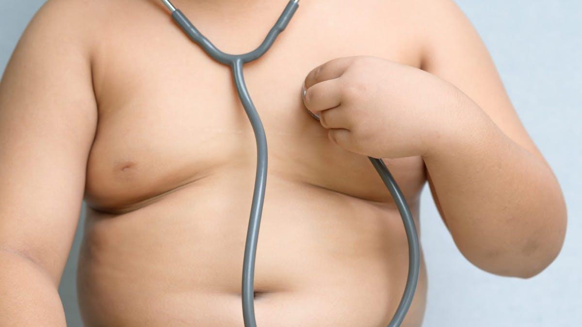 Har fetmarelaterade sjukdomar börjat förkorta den förväntade livslängden i USA?