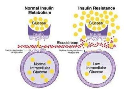 vad är insulinresistens