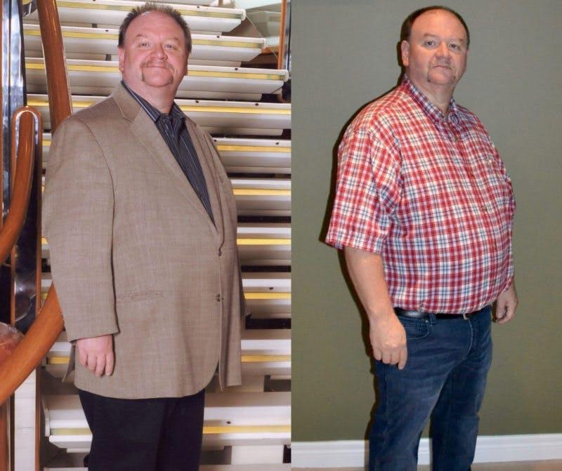 Före och efter: 17 kilo, all svullnad (titta på händerna) och alla diabetesmediciner borta.
