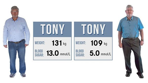 tony-before-after