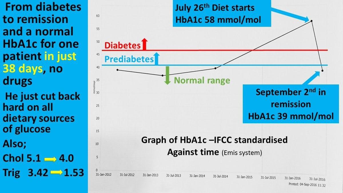 Patient reverserar sin diabetes på 38 dagar – genom att ta bort kolhydrater från kosten