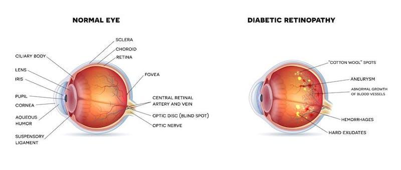 retinopathy-condition