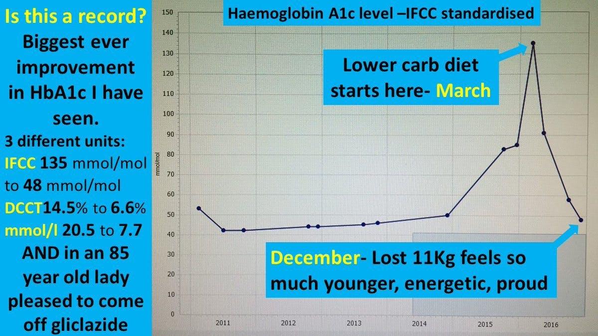 Ytterligare en dramatisk reversering av typ 2-diabetes